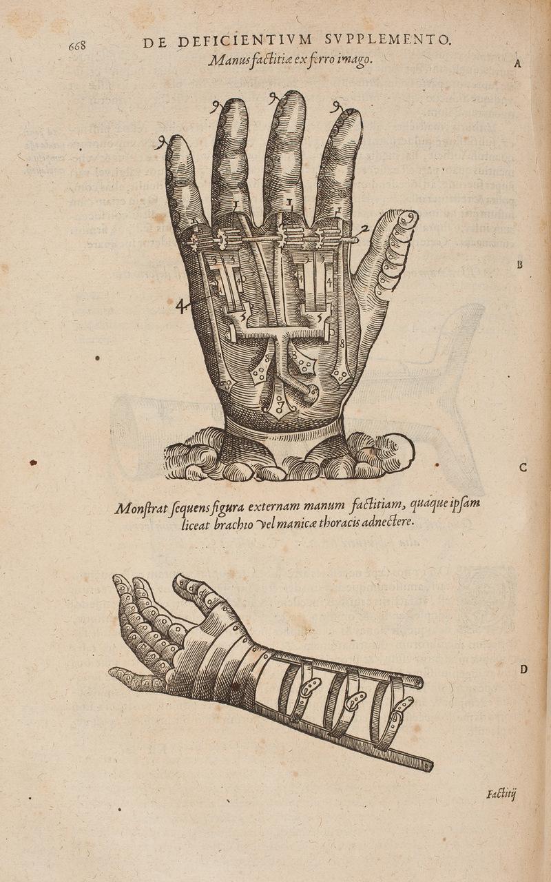 istoric medical de luxare a articulației umărului)